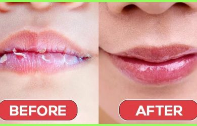 How to Get Rid of Chapped lips how to get rid of chapped lips without chapstick how to get rid of chapped lips fast without chapstick or vaseline how to get rid of dry lips at home how to cure chapped lips fast how to save chapped lips Top 8 Tips to Get Rid of Chapped Lips at Home Quickly How to Get Rid of Chapped lips. We have brought 8 Best Remedies that can make your Chapped Lips good at home right away & Quickly.