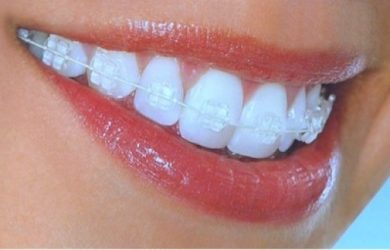 Invisalign Clear Braces: To Consider Or Not?