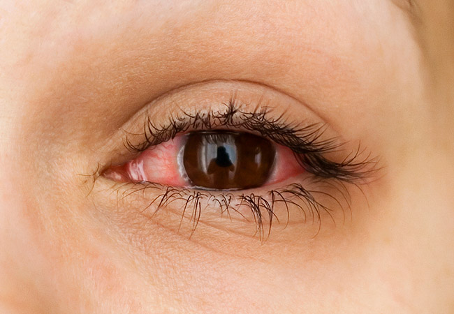 How to Look After Your Eyes When You Wear Contact Lenses