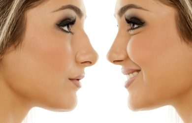 Let's Set the Record Straight About Nose Jobs