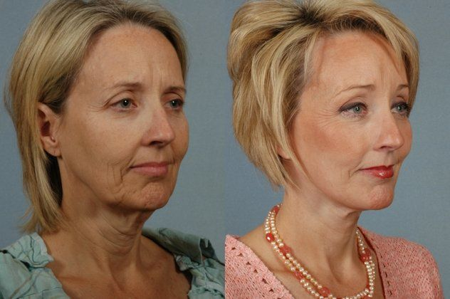 How Permanent Are The Results of a Facelift?