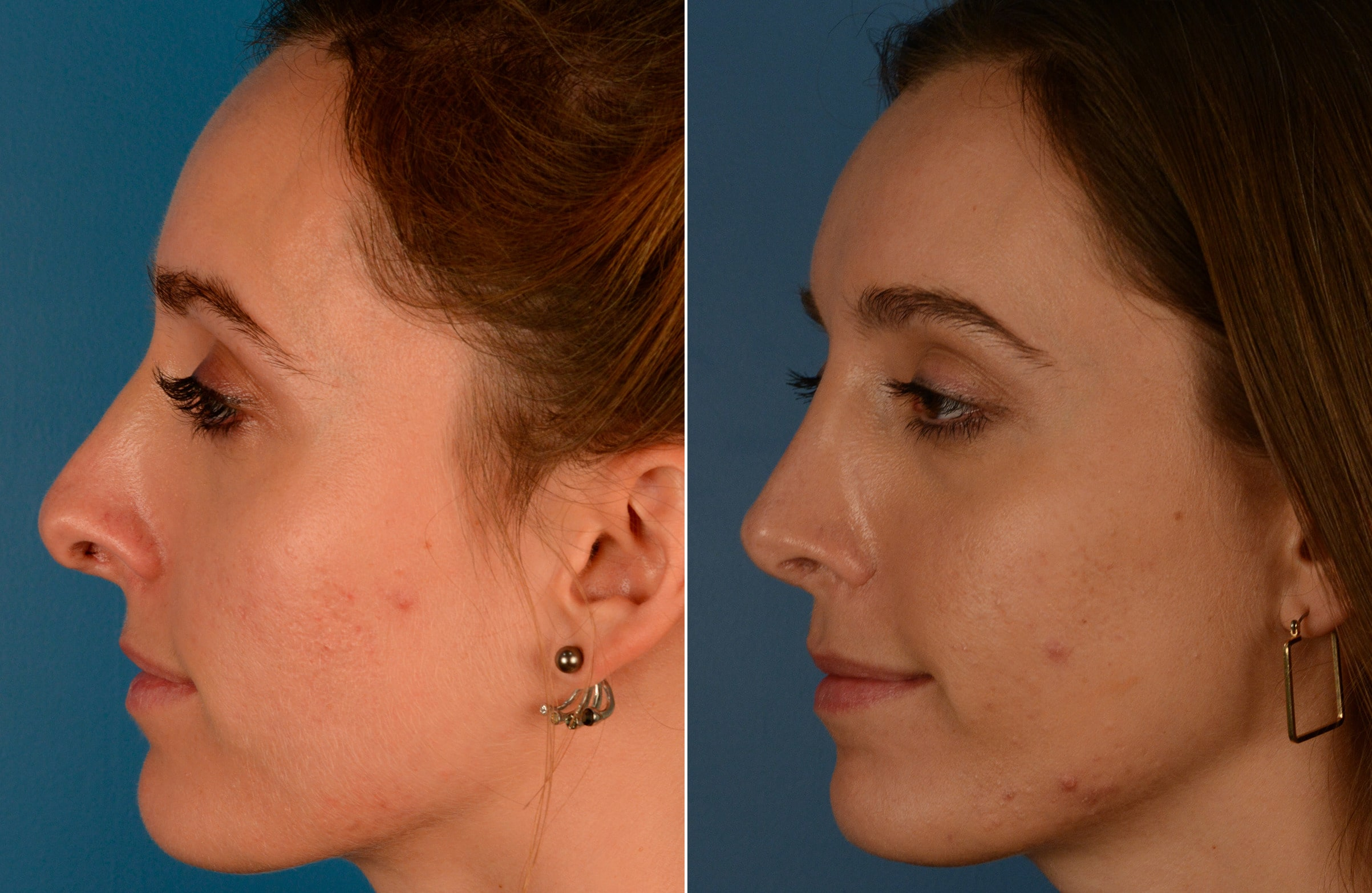 Why Should You Get A Revision Rhinoplasty?